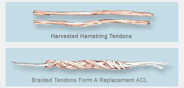 Figura 5. Tendões do semitendíneo e gracilis.