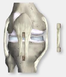 Figura 4. Utilização do tendão patelar como enxert, tendão que liga a patela ao osso da tíbia.