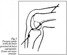 fio-guia saindo acima do limite (fig 04)