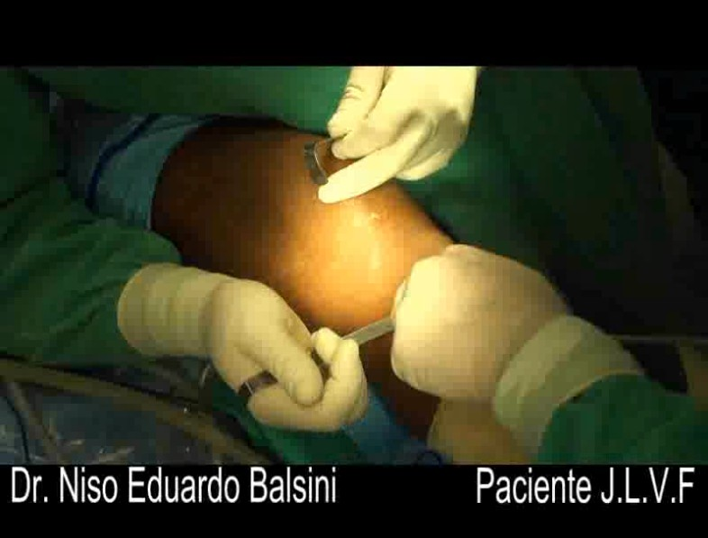 Ligamento patelo femoral