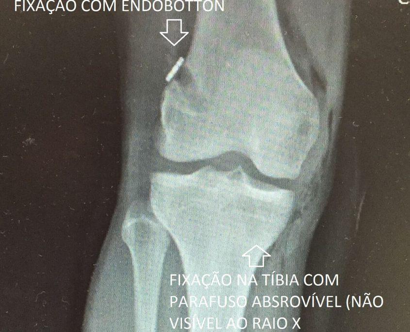 Figura 11 - Raiox apos cirurgia de reconstrucao do LCA mostrando a fixacao do enxerto no femur com Endobotton