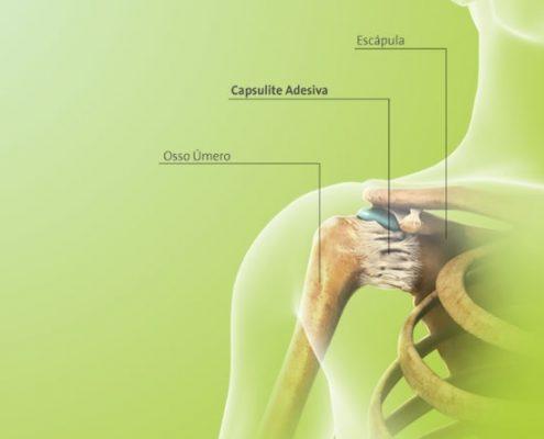 capsulite-adesiva (1)