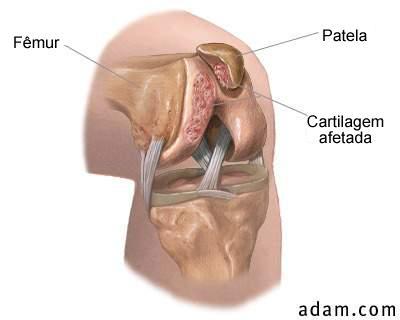 dor-femuro-patelar (4)