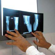 dor-femuro-patelar (5)