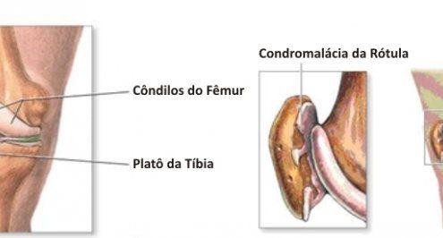 dor-femuro-patelar (6)