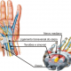 sindrome-do-tunel-do-carpo (1)