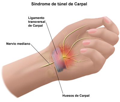 sindrome-do-tunel-do-carpo (4)