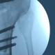 3 tratamento de lesoes do joelho