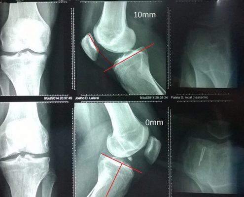 4 transplante autologo de cartilagem (3)