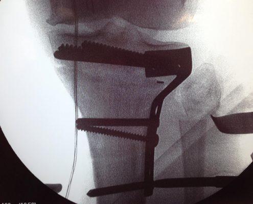 4 transplante autologo de cartilagem (5)
