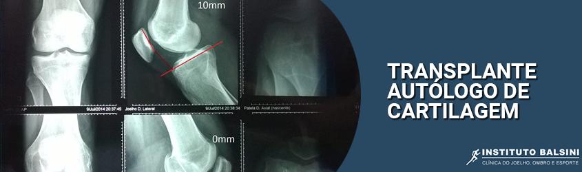 4 transplante autologo de cartilagem