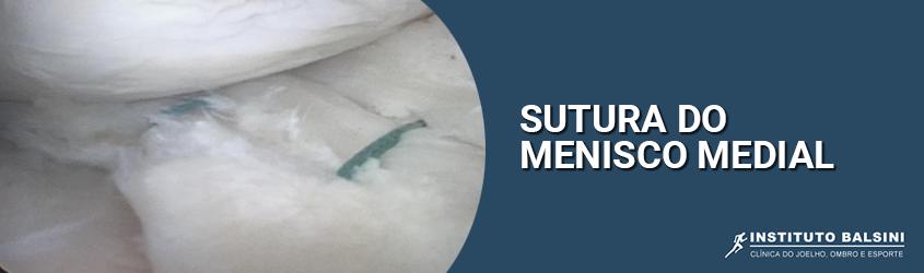 Sutura do menisco medial