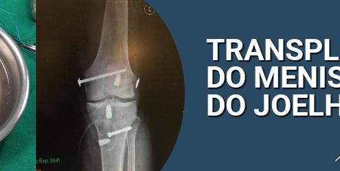 terceiro caso de transplante do menisco do joelho de 2017