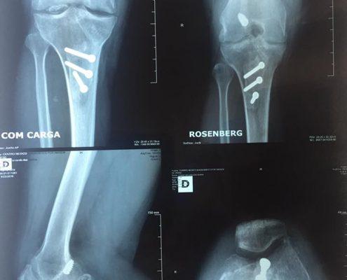 transplantes de ossos cartilagem e menisco (1)
